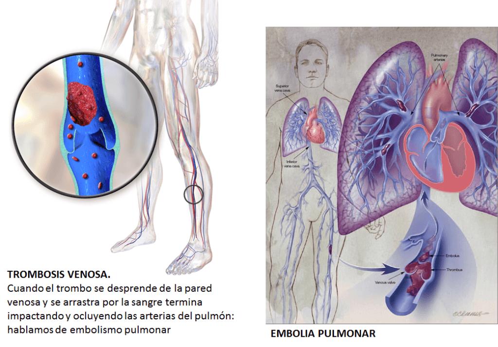 embolias