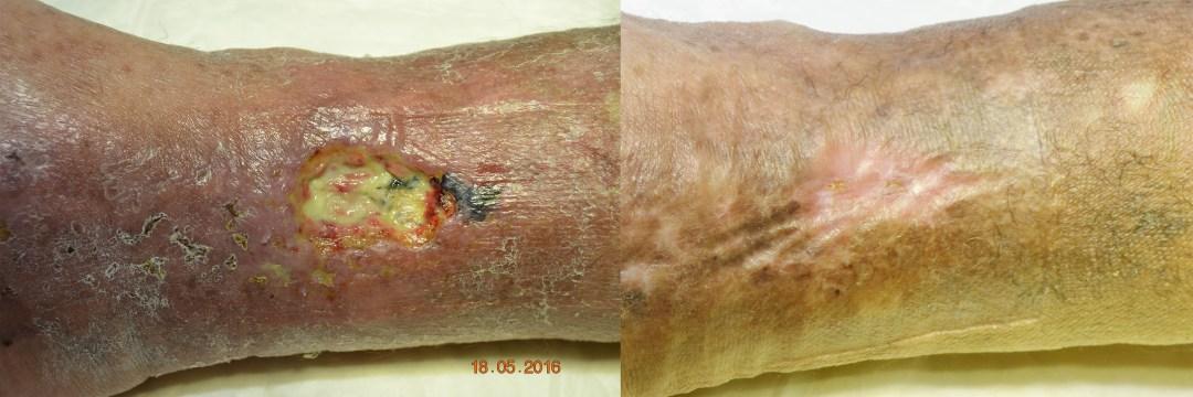 ulcera-curada