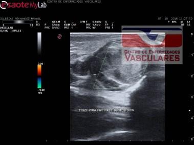 Pseudoaneurisma trombosado con permeabilidad de la arteria tibial posterior.