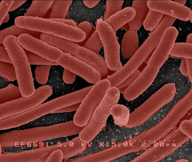 e-coli.jpg?fit=216%2C182&ssl=1