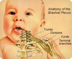 erbs palsy, shoulder dystocia, birth injury malpractice lawyers nj