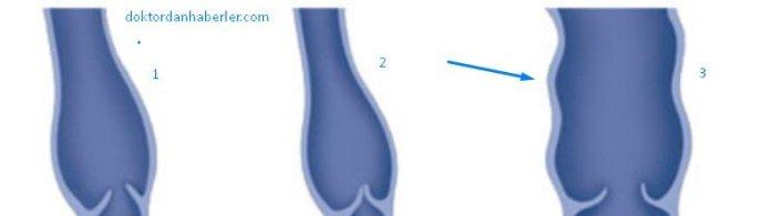 dilatasyon nedir