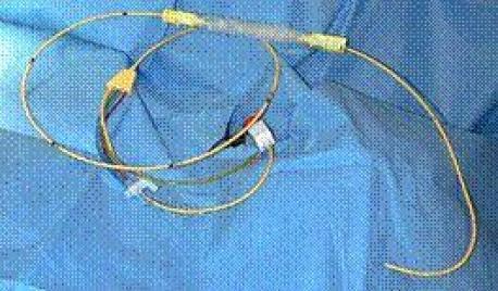 pulmoner-arter-katateri