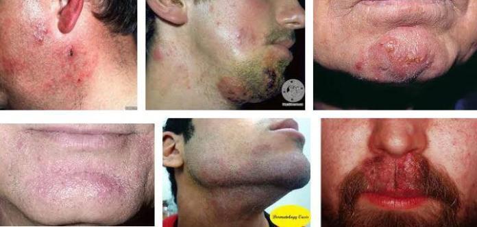 tinea barbae nedenleri