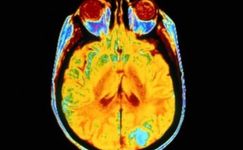 glioblastoma multiforme nedenleri