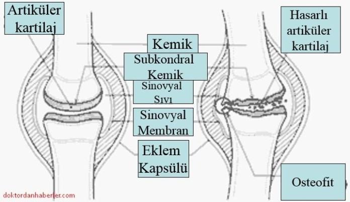 osteoartrit ve eklem yapisi
