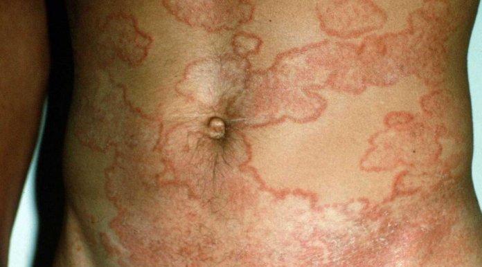 tinea corporis (vücut mantarı) nedir