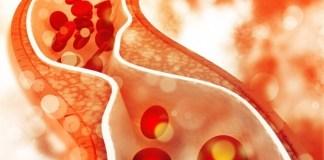 kolesterol icin hangi doktora gidilir