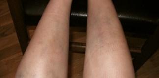 bacakta ve ayakta morarma icin hangi doktora gidilir