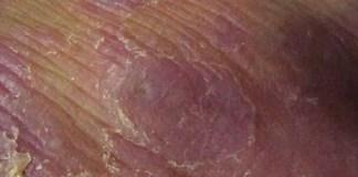 peniste yaraya hangi bolum bakar