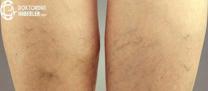 bacaktaki damarlarin belirginlesmesi