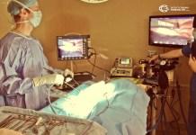 laparoskopik splenektomi
