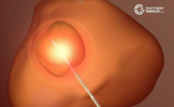 prostat biyopsisi