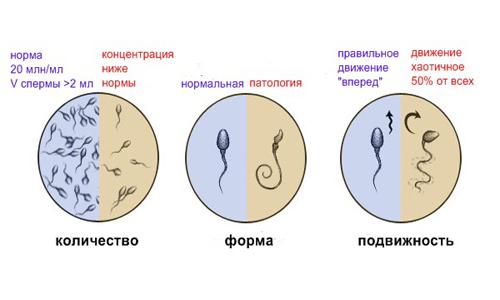 Мужское бесплодие: вялые малоподвижные сперматозоиды. Малоподвижные сперматозоиды – как побороть бесплодие
