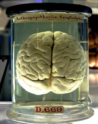 Мозг человеческий