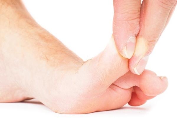Как долго больно ходить если ударил выбил или вывихнул мизинец симптомы фото
