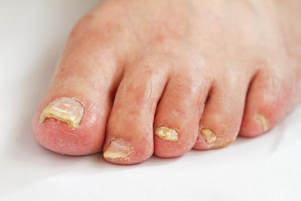 Грибковая инфекция у женщин причины. Методы избавления от грибка во влагалище у женщин