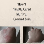 How I Finally Cured My Dry, Cracked Skin