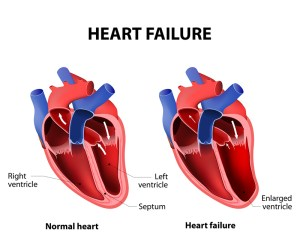 Congestive Heart Failure treatment and Causes