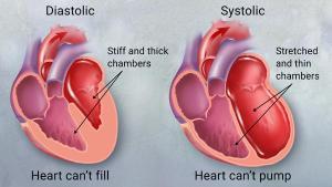 diastolic and systolic