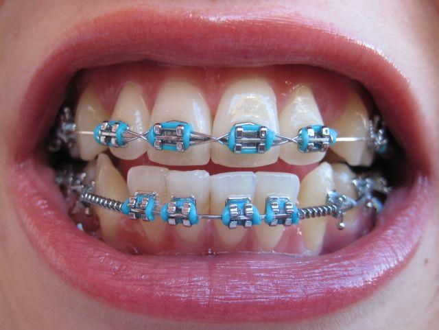 Aparelho Ortodôntico Modelos de Aparelho Odontológico