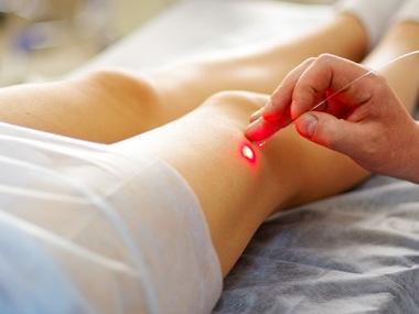 Tratamento de Varizes a Laser Tratamento de Varizes a Laser