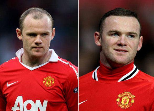 Implantes de Cabelo Imagens de Rooney Implantes de Cabelo - Imagens de Rooney