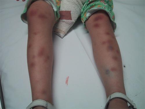 Leukaemia - bruising