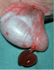 torted appendix testes at operation