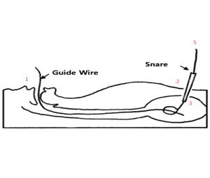 PEG insertion