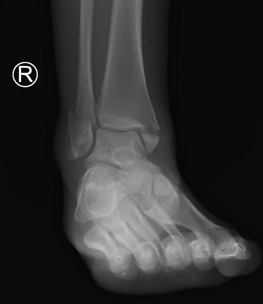 Ankle X Rays