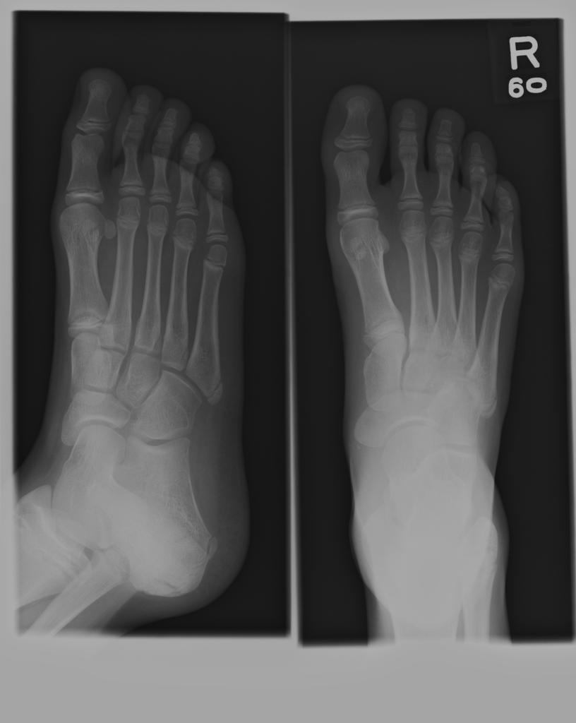 Foot X Rays