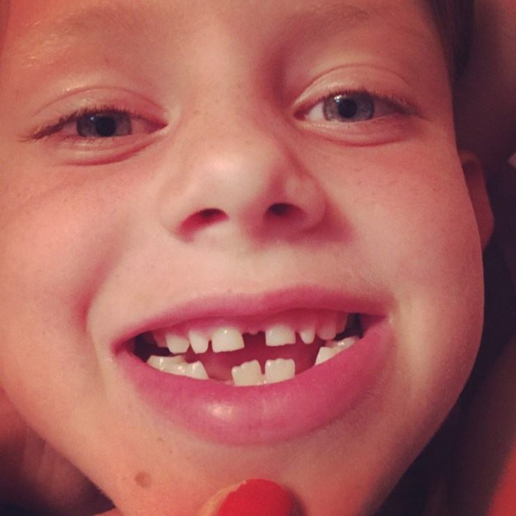 Min tandløse tøs