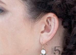 earfreckle