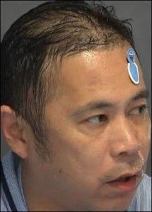 岡村隆史の髪の毛薄い画像