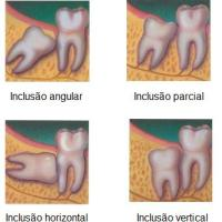 Dentes do siso inclusos