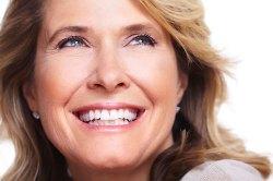 Dental Veneers 1 | Dores Dental - Longmeadow, MA