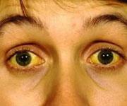 Ojos amarillos por dormir con coraje