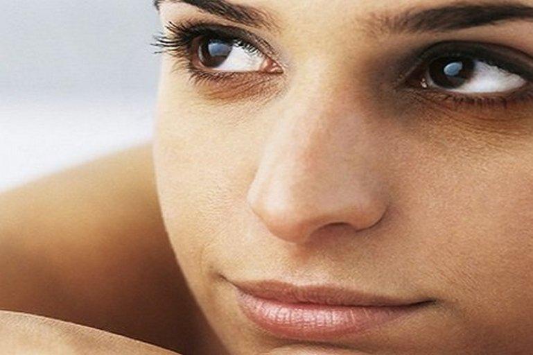5 лучших способов убрать синяки под глазами
