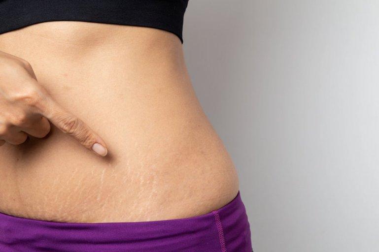 Растяжки на теле – причины и методы избавления