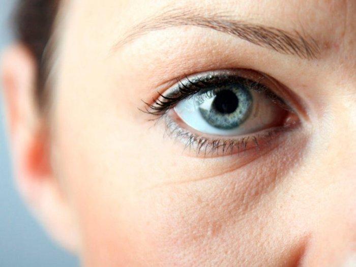 Мешки под глазами – причины и способы избавления