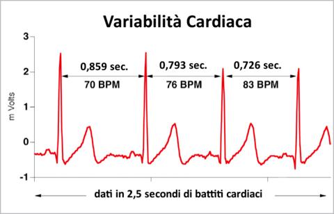 Esempio_variabilita_cardiaca_large