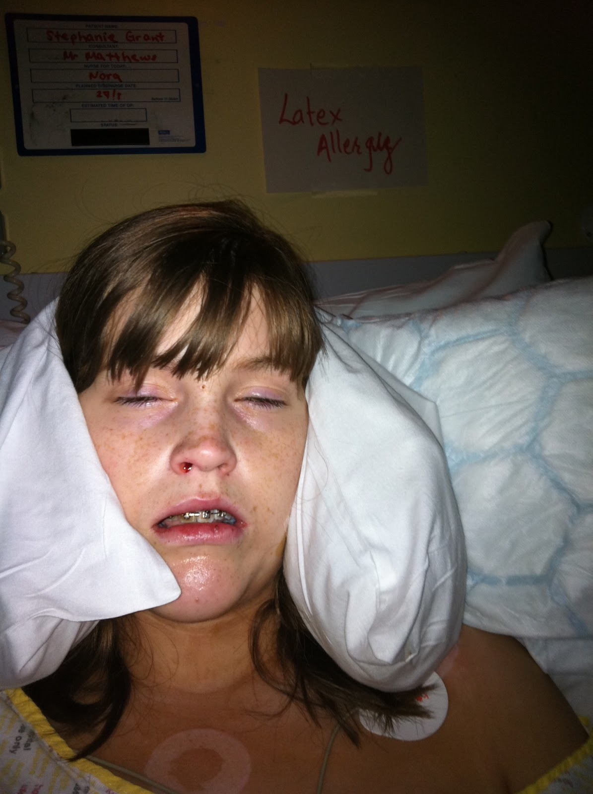 The Evening After Double Jaw Surgery