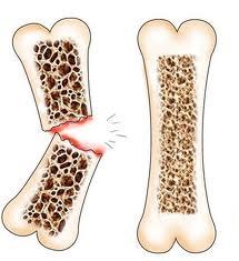 Fraqueza Ossos Andropausa Modulação Hormonal Masculina