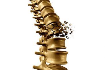 osteoporose Andropausa Modulação Bioidêntica