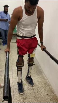 Uttamkumar Isurdeen walking with orthosis support which has restored his mobility.