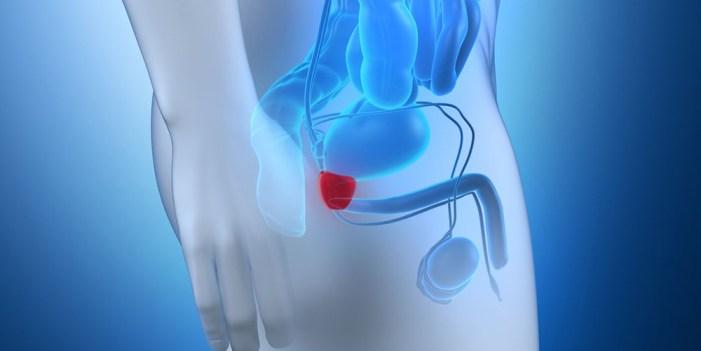 Invita Secretaría de Salud a prueba de cáncer prostático