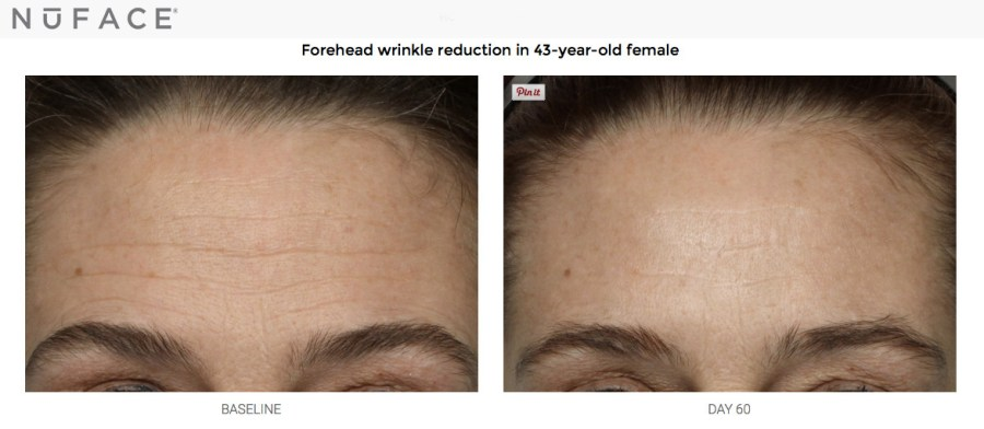 NuFACE forehead wrinkle reduction