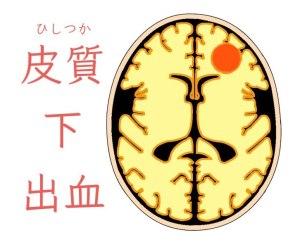 脳出血、皮質下出血