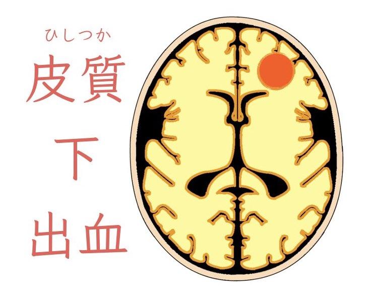 脳の表面に出血!皮質下出血の症状と治療について解説!